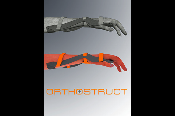 Orthostruct 3D Visualisierung
